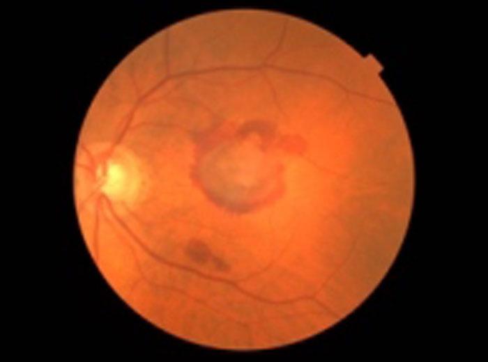 Augenärzte im Zentrum Heilbronn - Feuchte-AMD