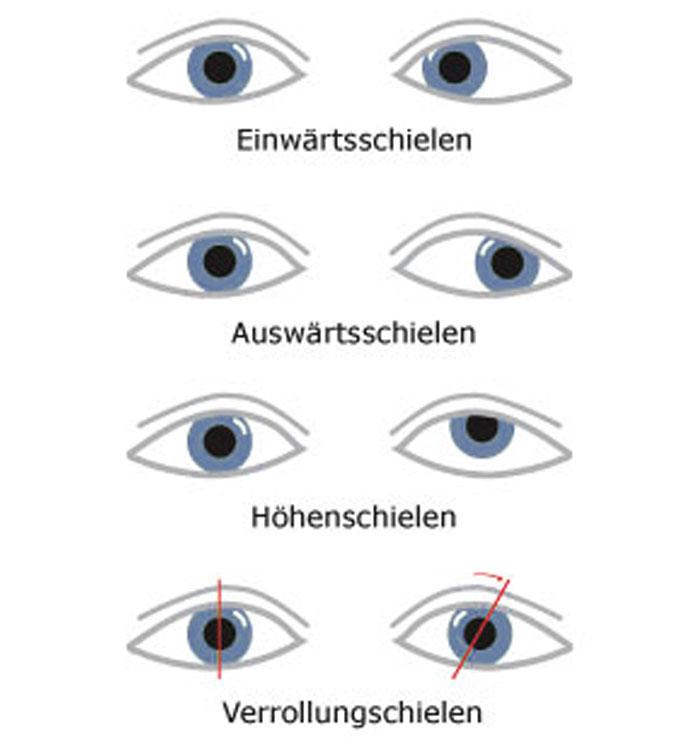 Augenärzte im Zentrum Heilbronn - Sehschule - Schielen