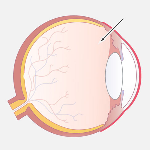 Augenärzte im Zentrum Heilbronn - IVOM